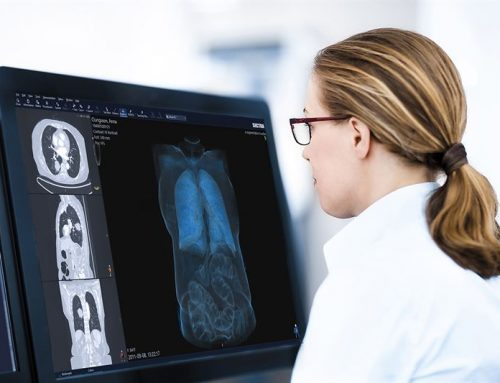 Sectra wins enterprise imaging order at Belgium's Jessa Hospital
