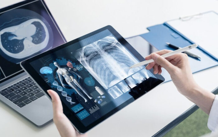 frost-and-sullivan radiology it