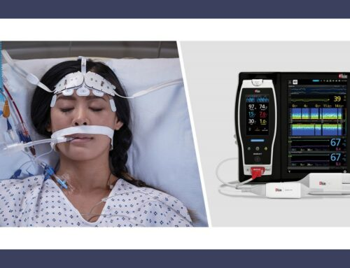 Study Investigates the Effects of Ventilatory Rescue Therapies on the Cerebral Oxygenation of COVID-19 Patients