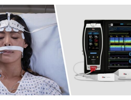 Study Investigates the Ability of Masimo O3® to Aid in Monitoring Septic Shock ICU Patients