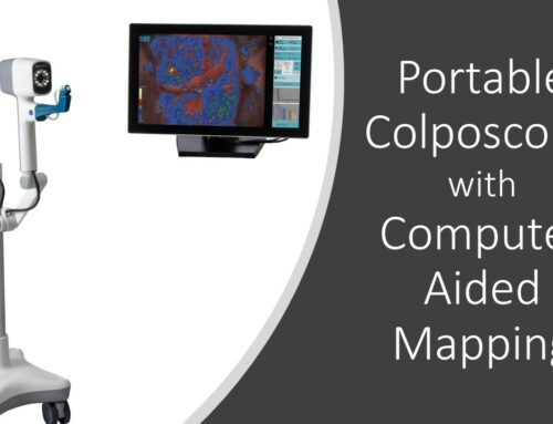 DYSIS Announces New Compact and Portable Colposcope Design with Computer-Aided Cervical Mapping
