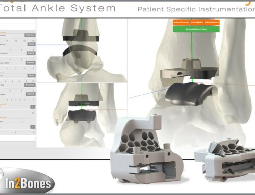 New Joint Restoration Pre-Surgery Planning Software and3D-Printed Cutting Guides