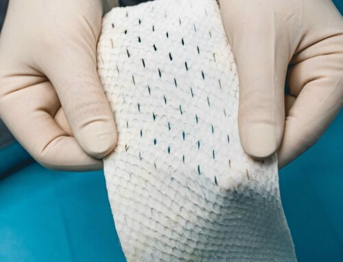New Fish-Skin Implantable Medical Product for Surgery